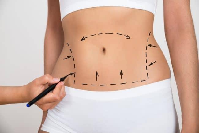 bauchdeckenstraffung plastische chirurgie