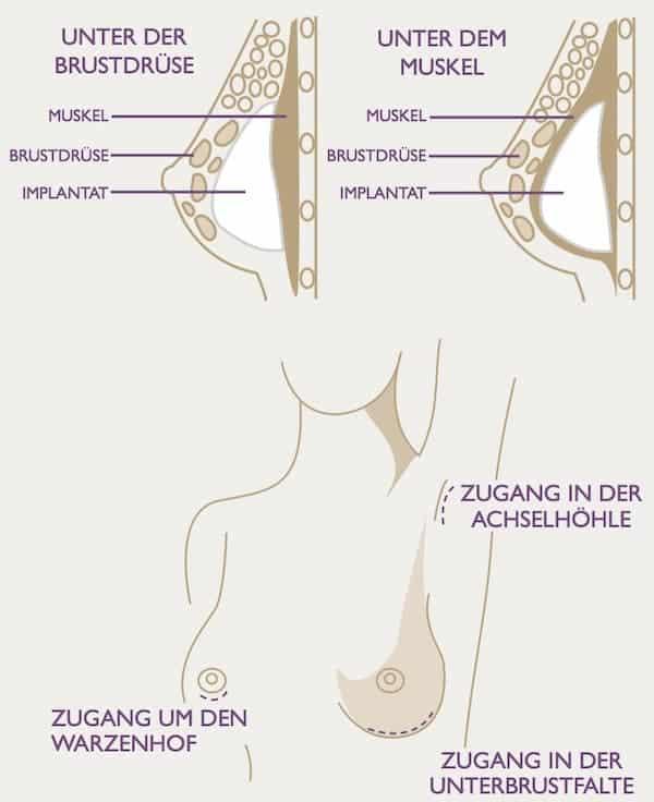 Schaubild - Wo Brustimplantate platziert werden