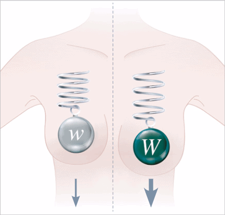 Weniger Belastung Brustgewebe